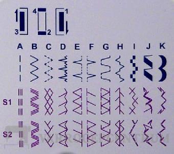 gritzner-dorina-304-varrogep